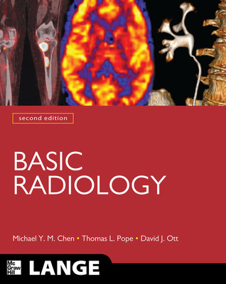 Basic Radiology, Second Edition